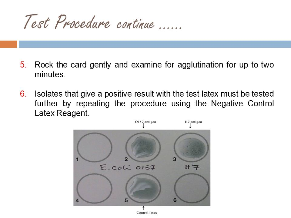 Stool Culture E Coli O157 H7 Ppt Video Online Download