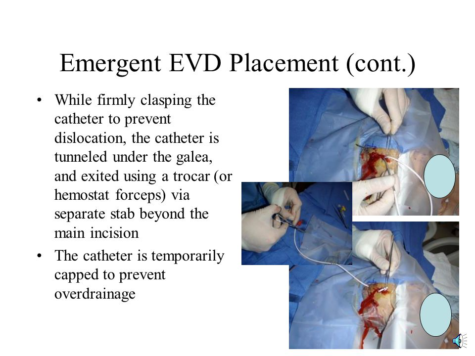 Surgical Coordinating Center For Clear Iii Ppt Video