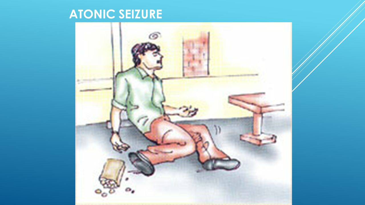Atonic Seizures In Adults 11
