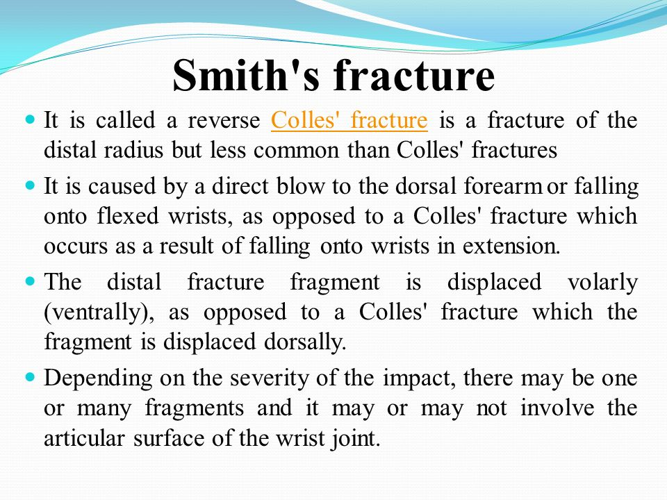 Colle's Fracture. - ppt download