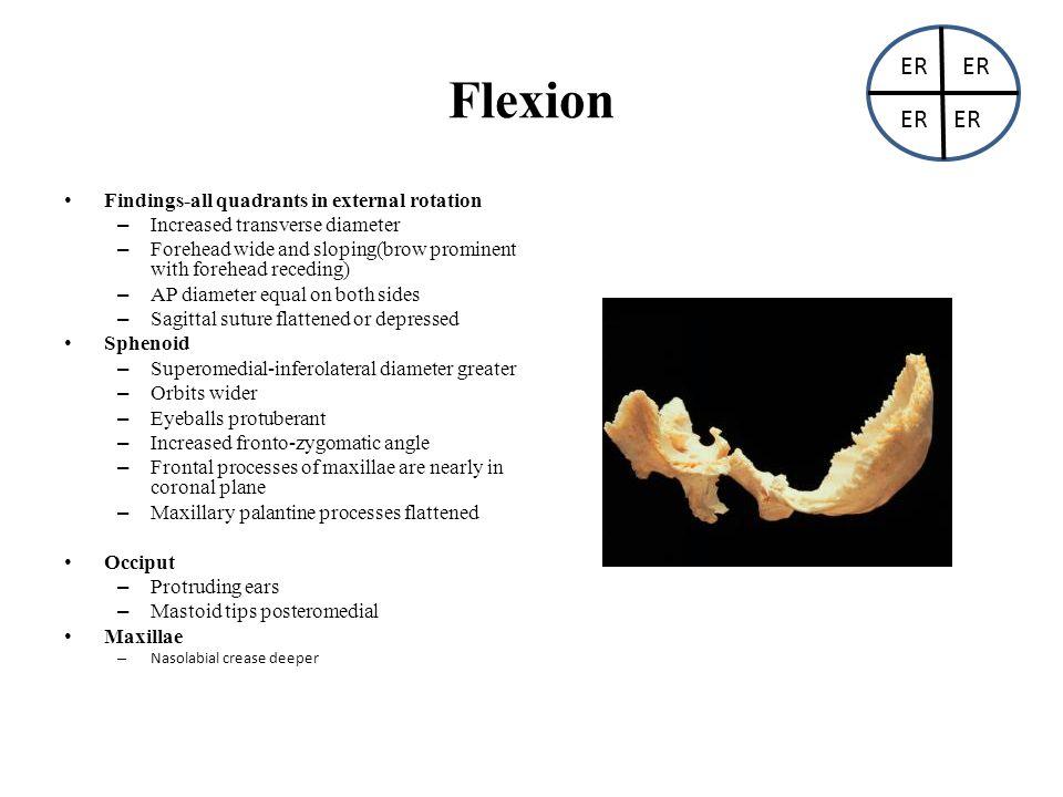 Flexion ER ER ER ER Findings-all quadrants in external rotation
