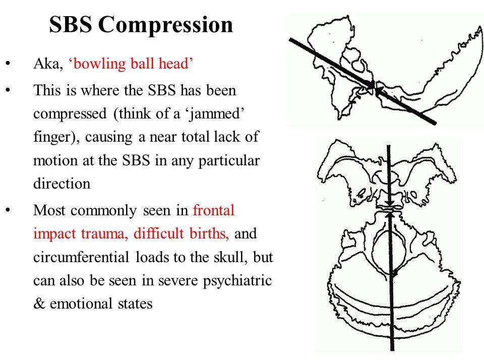 SBS Compression Aka, 'bowling ball head'