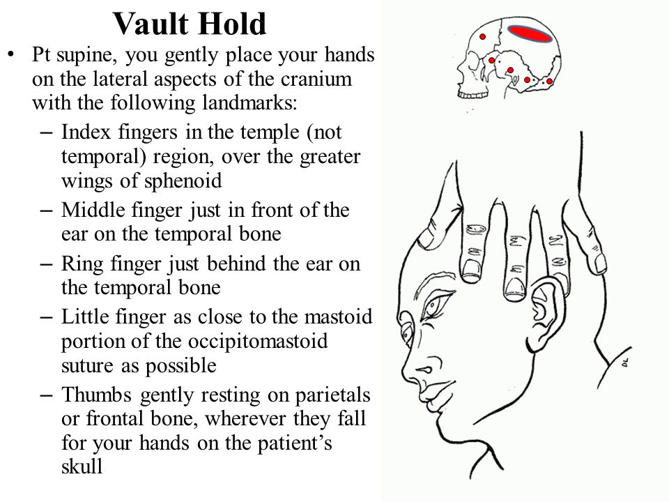 Vault Hold Pt supine, you gently place your hands on the lateral aspects of the cranium with the following landmarks: