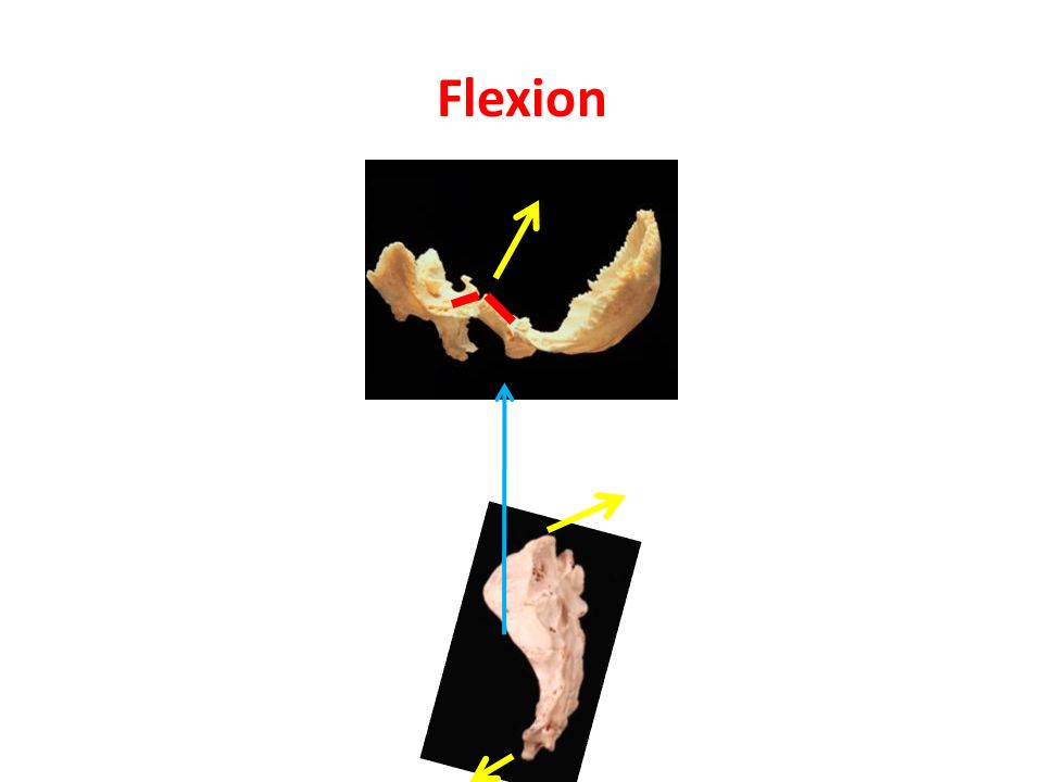 Flexion Sacrum moves posterior = counternuation