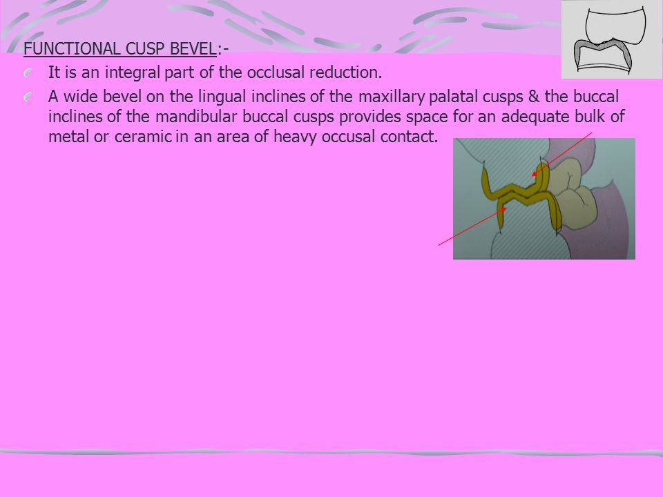 FUNCTIONAL CUSP BEVEL:-
