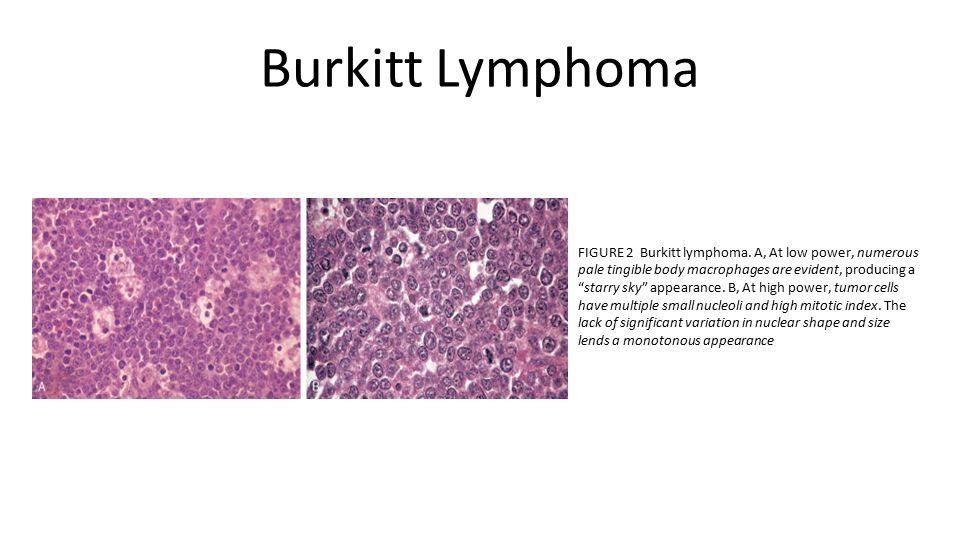 richter s transformation in chronic lymphocytic leukemia Richter syndrome (rs) is defined as the transformation of chronic lymphocytic leukemia (cll) into an aggressive lymphoma, most commonly diffuse large b-cell lymphoma (dlbcl) rs occurs in approximately 2% to 10% of cll patients during the course of their disease, with a transformation rate of 05% to 1% per year.