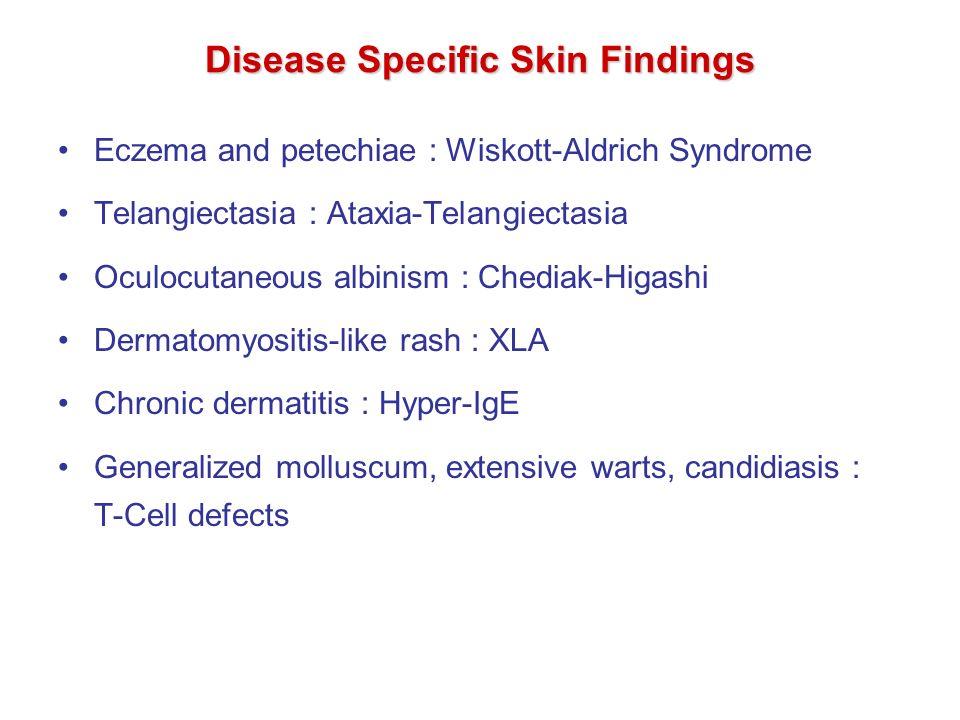 Rett syndrome  Wikipedia