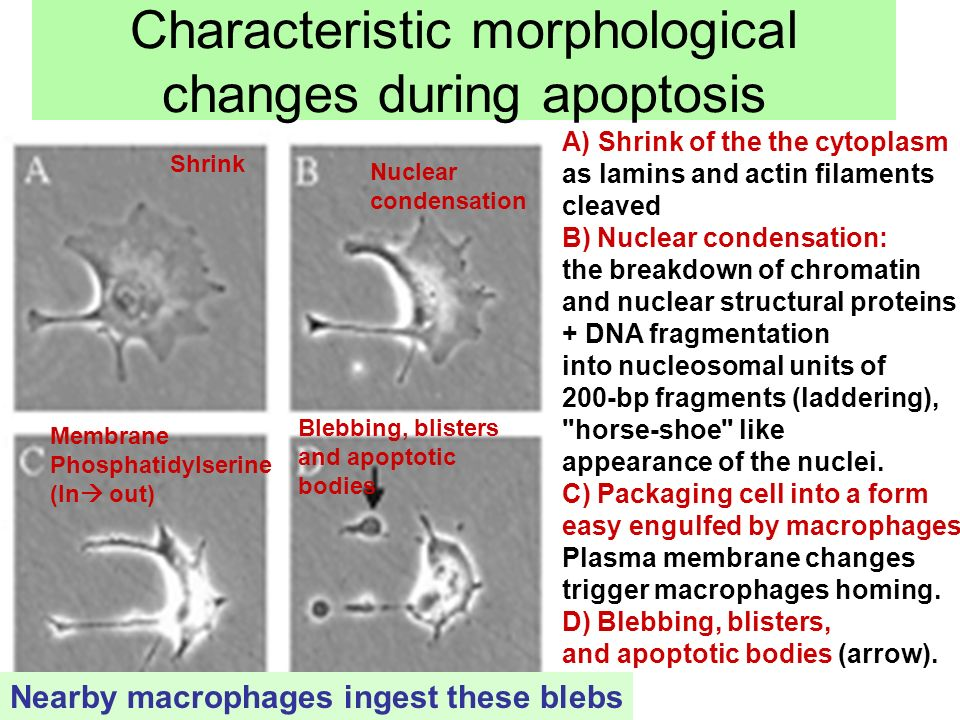 Apoptosis Cell Suicide Ppt Video Online Download