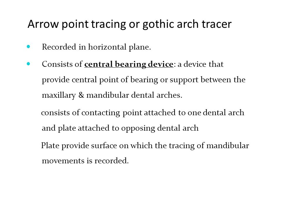 Arrow Point Tracing Or Gothic Arch Tracer