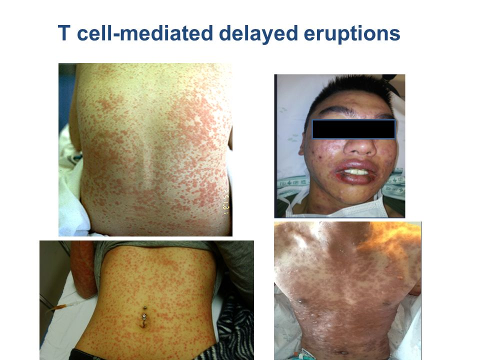 T cell-mediated delayed eruptions