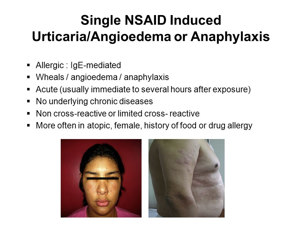 Single NSAID Induced Urticaria/Angioedema or Anaphylaxis