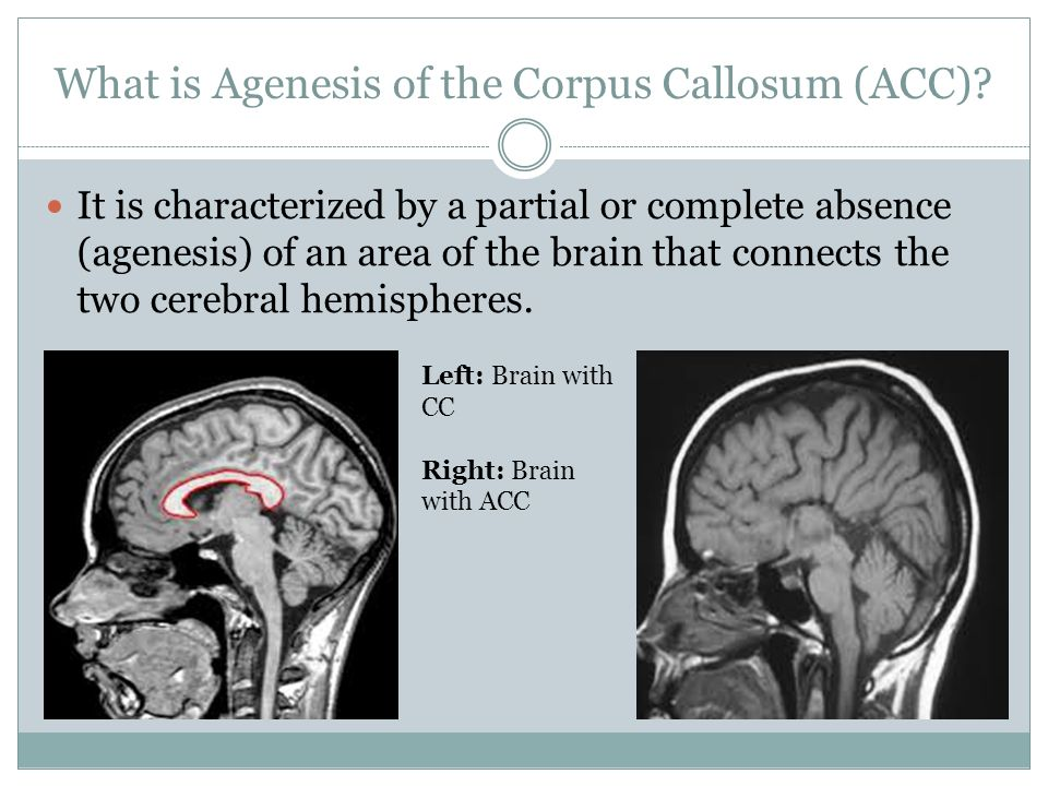 Agenesis of the corpus callosum Presented by: Mallory ...