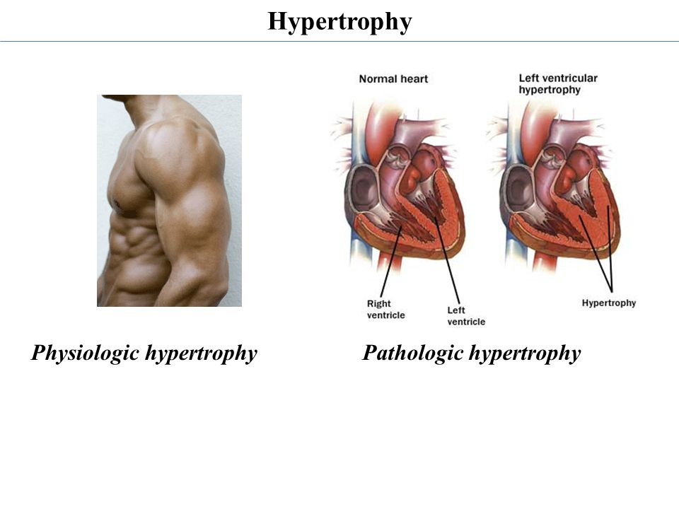 Hypertrophy Physiologic hypertrophy Pathologic hypertrophy