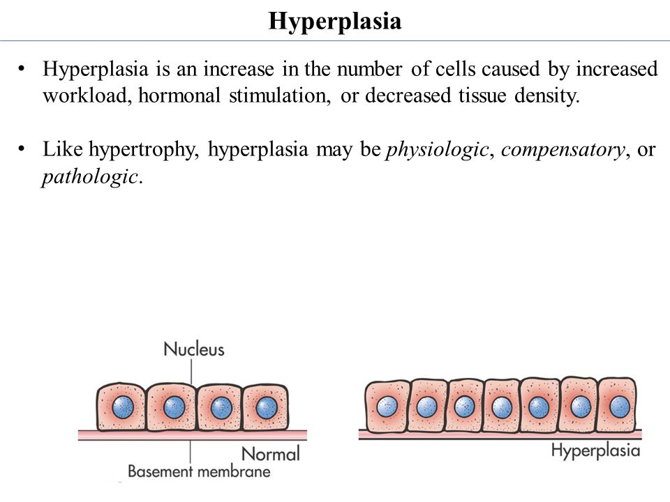 Hyperplasia Hyperplasia is an increase in the number of cells caused by increased workload, hormonal stimulation, or decreased tissue density.