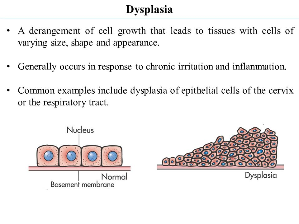 Dysplasia A derangement of cell growth that leads to tissues with cells of varying size, shape and appearance.