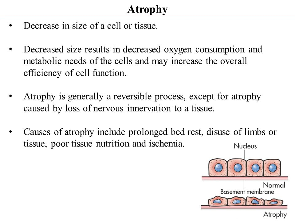 Atrophy Decrease in size of a cell or tissue.