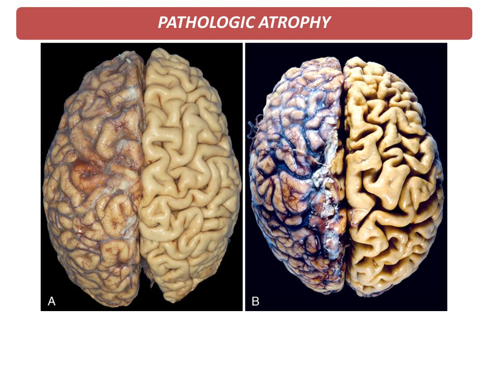 PATHOLOGIC ATROPHY 3. Physiologic atrophy of the brain in an 82-year-old male. The meninges have been stripped.