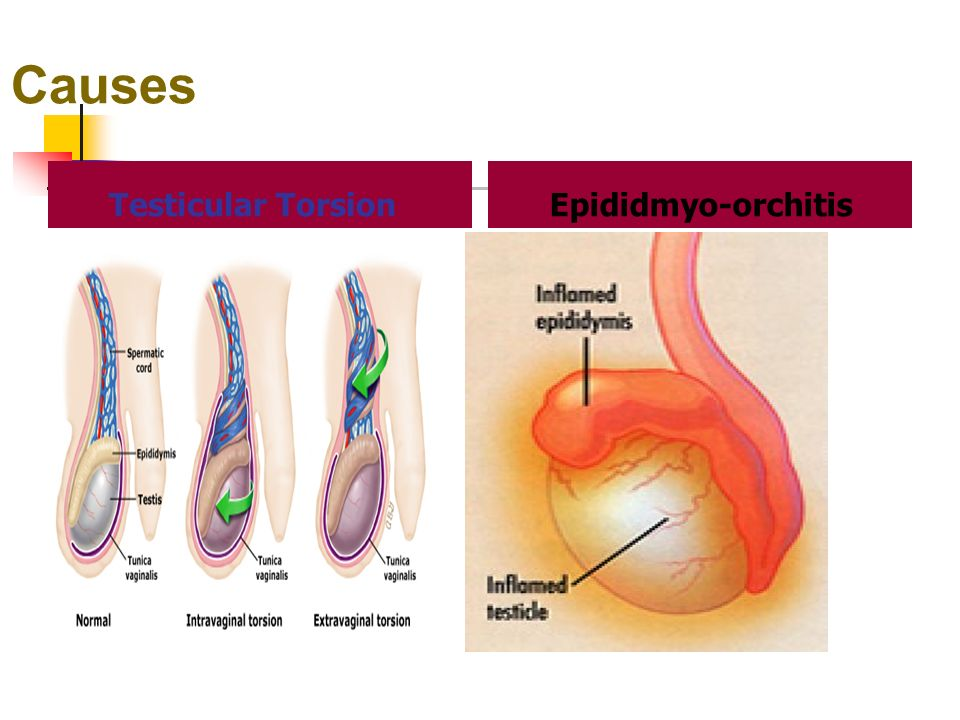 testicular torsion. 19 causes testicular torsion epididmyo-orchitis