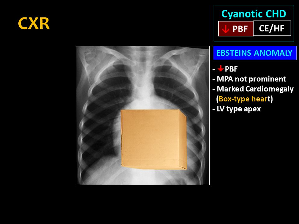 Cyanotic Congenital Heart Disease Dr D Muthukumar Md Dm