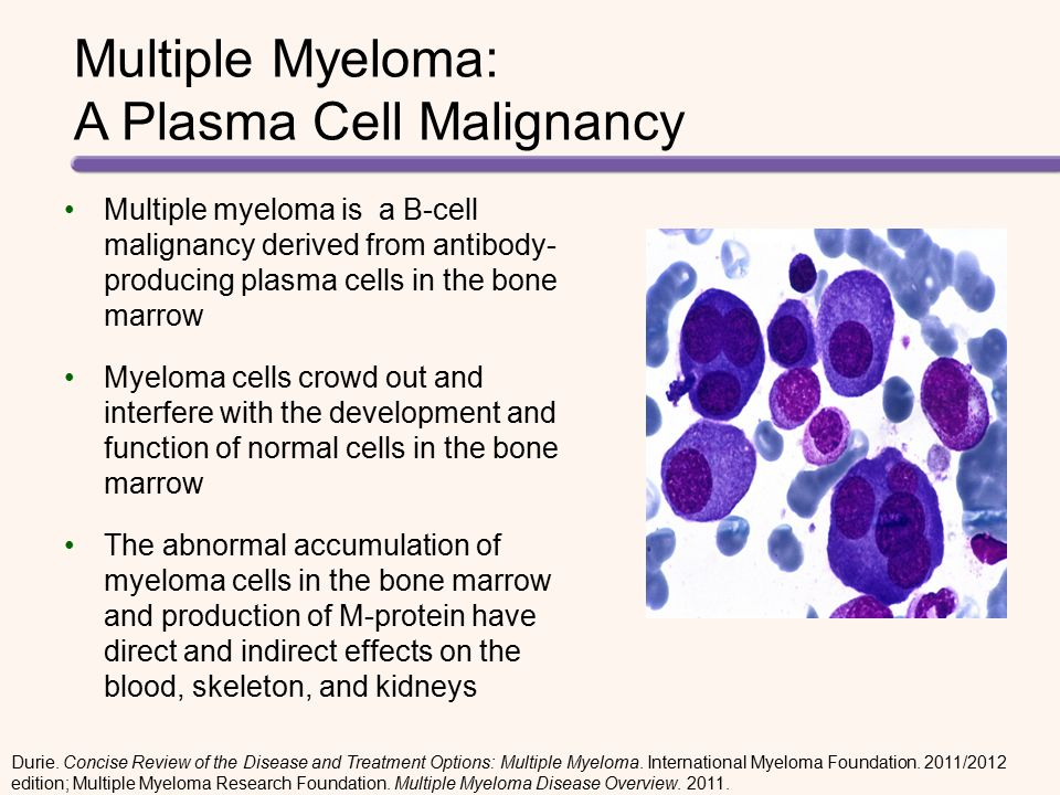 Considerations for Optimizing Transplant in Multiple ... Multiple Myeloma Cancer
