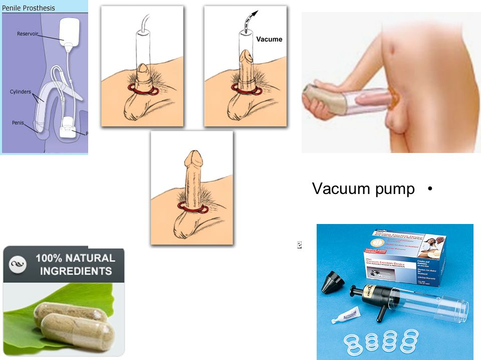 penile vacuum pump therapy