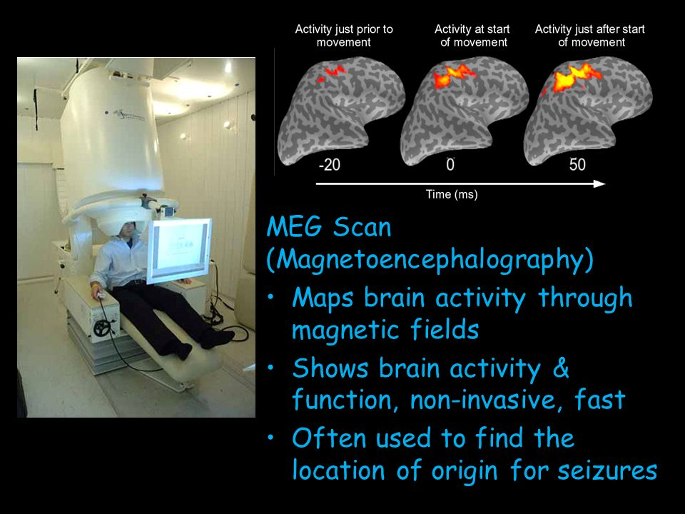 Brain Imaging Techniques Ppt Download