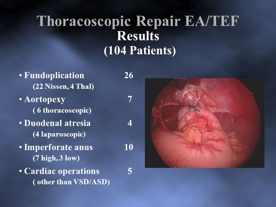 Laparoscopic repair high imperforate anus — img 9
