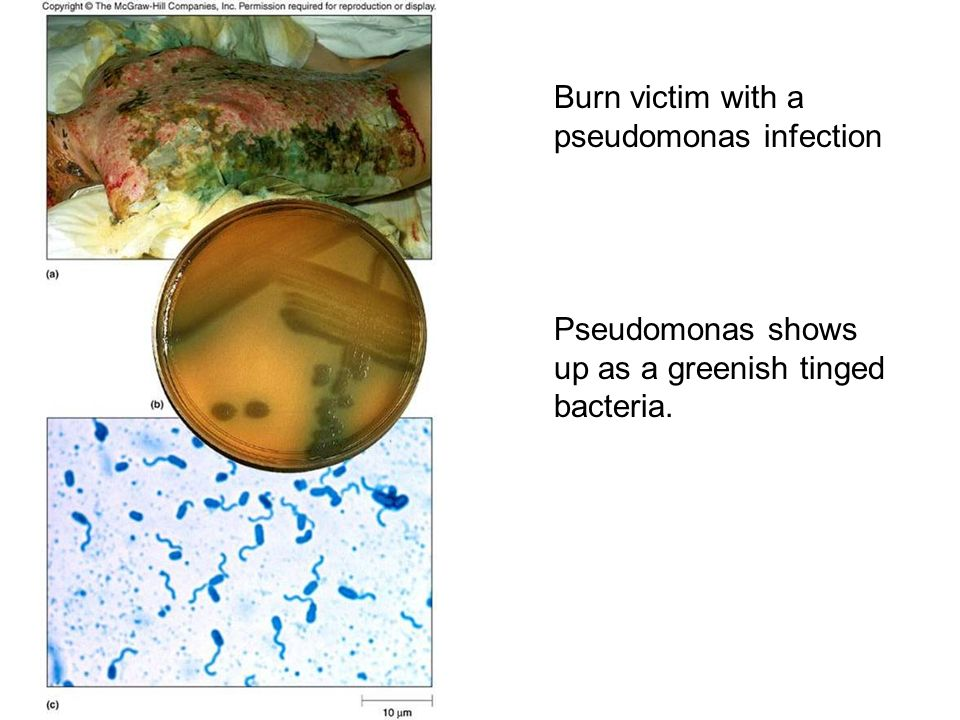 Wound infections due to opportunistic corynebacterium