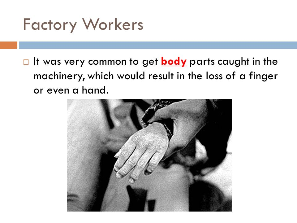 Factory Workers It was very common to get body parts caught in the machinery, which would result in the loss of a finger or even a hand.