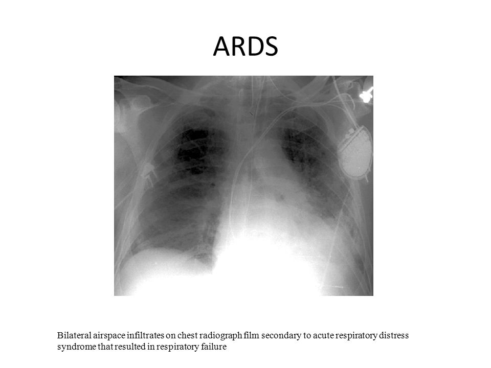 acute resiratory distress syndrome Acute respiratory distress syndrome (ards) is a common and devastating condition which can affect all adult patients - eg, medical, surgical and obstetric patients it occurs when non-cardiogenic pulmonary oedema (secondary to acute damage to the alveoli) leads to acute respiratory failure.