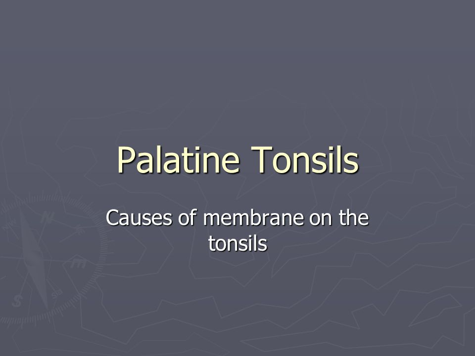 Causes of membrane on the tonsils