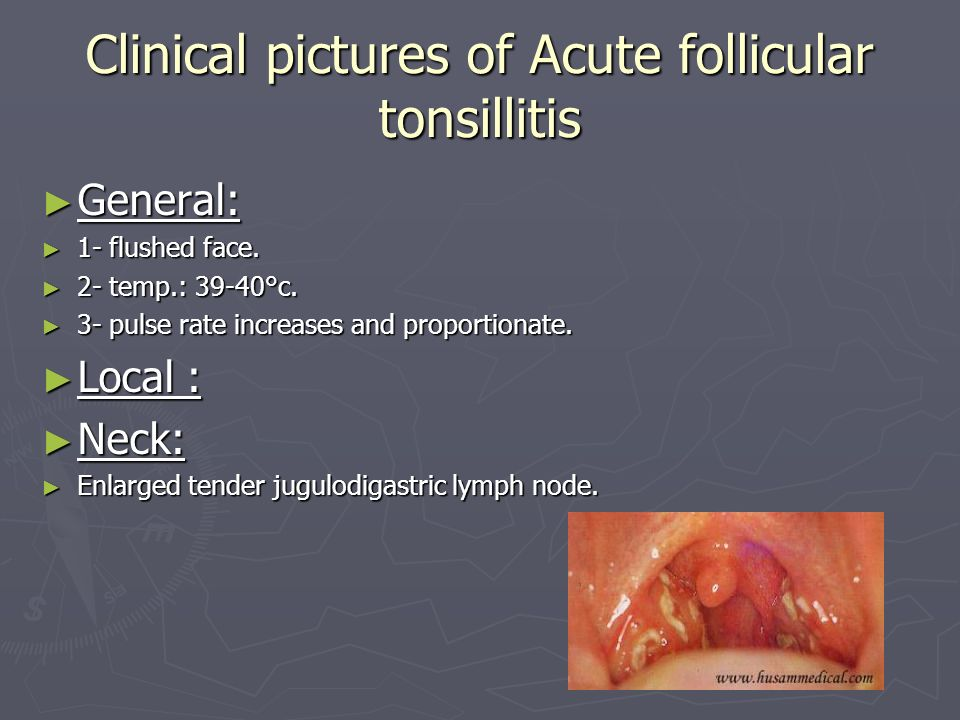 Clinical pictures of Acute follicular tonsillitis