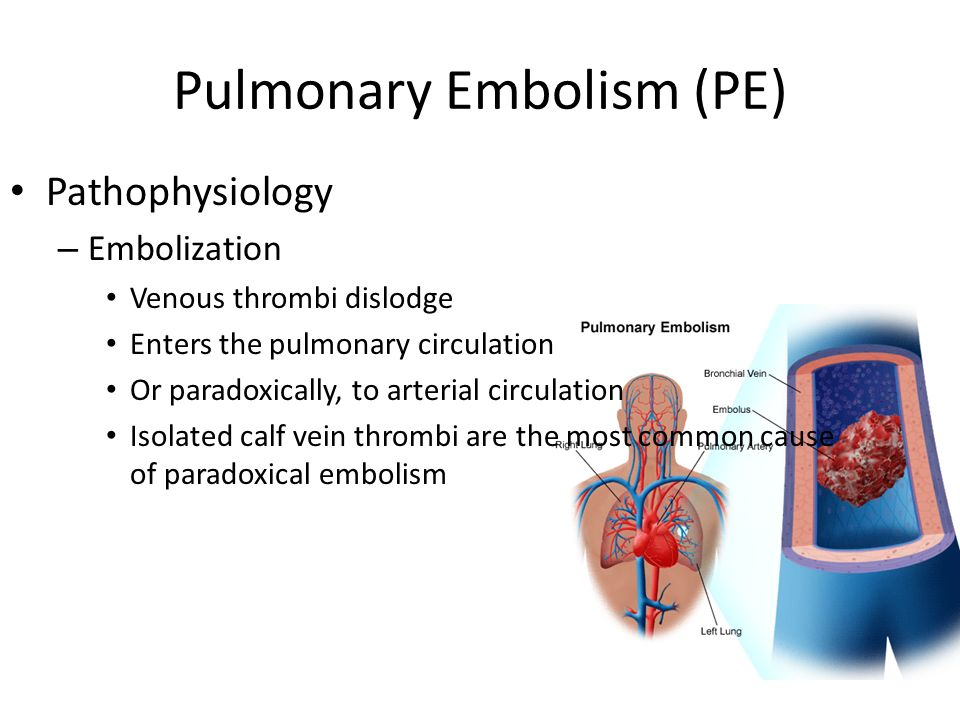 Pulmonary Embolism Air Travel After