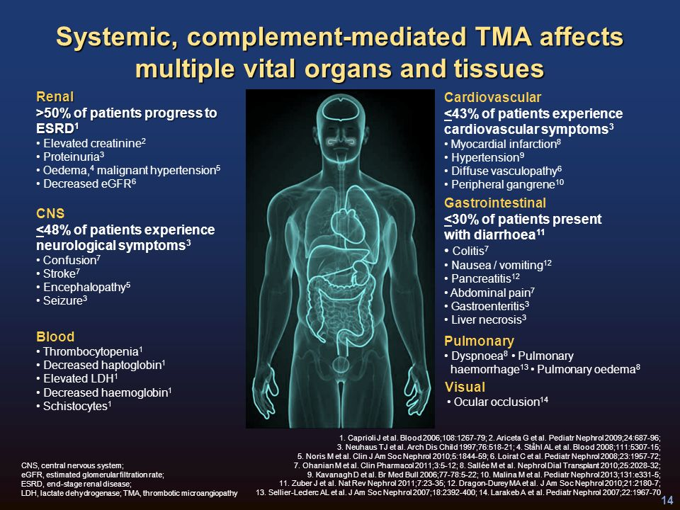 Malignant hypertension endstage renal disease