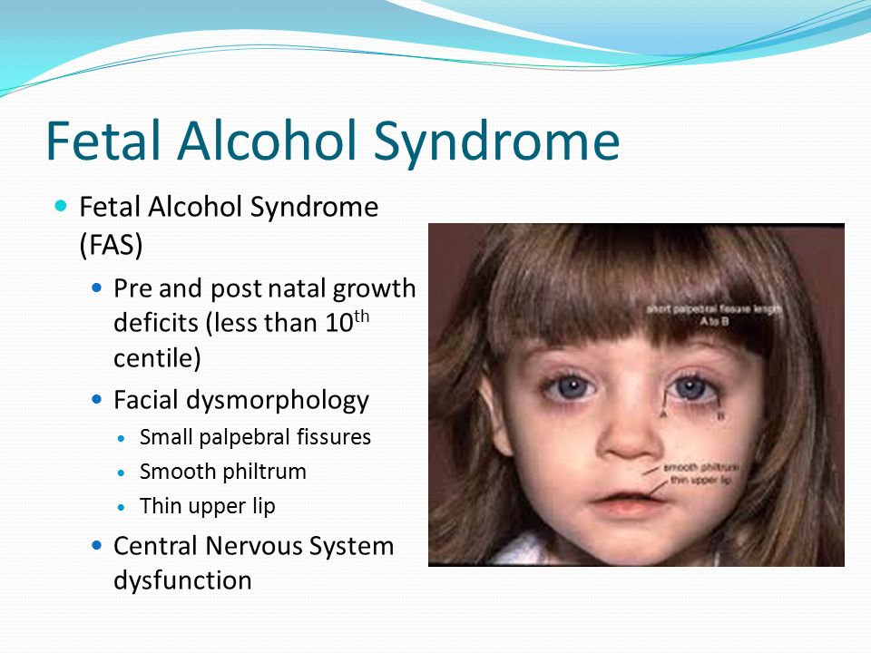 an analysis of the fetal alcohol syndrome in the development of a fetus Maternal exposure to alcohol in-utero is a known risk and cause of fetal alcohol syndrome for normal fetal development fetal disorders sciencedaily.