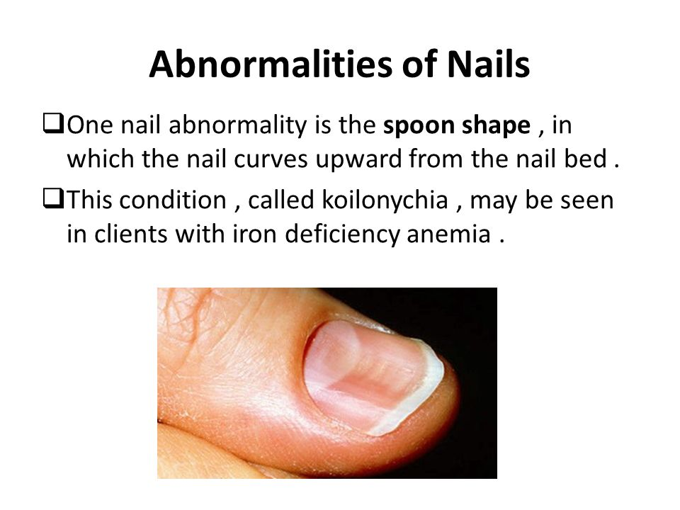 Integumentary System: Skin, Hair, and Nails - ppt video online download