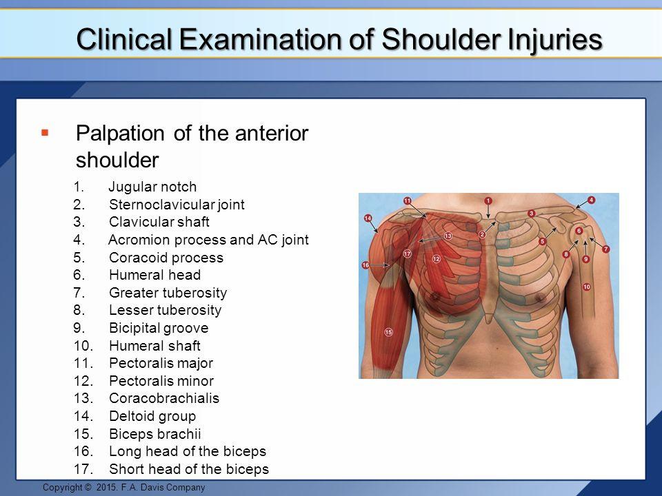 Shoulder and Upper Arm Pathologies - ppt video online download