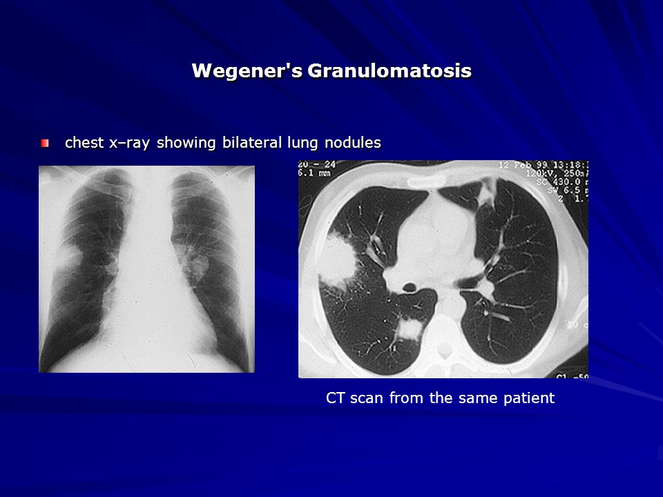 Granulomatosis with polyangiitis (upper respiratory tract ...