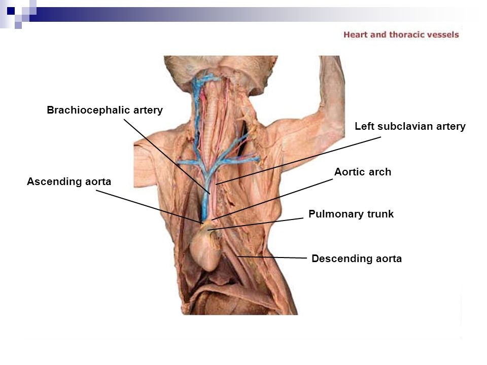 Outstanding Innominate Artery Illustration - Human Anatomy Images ...