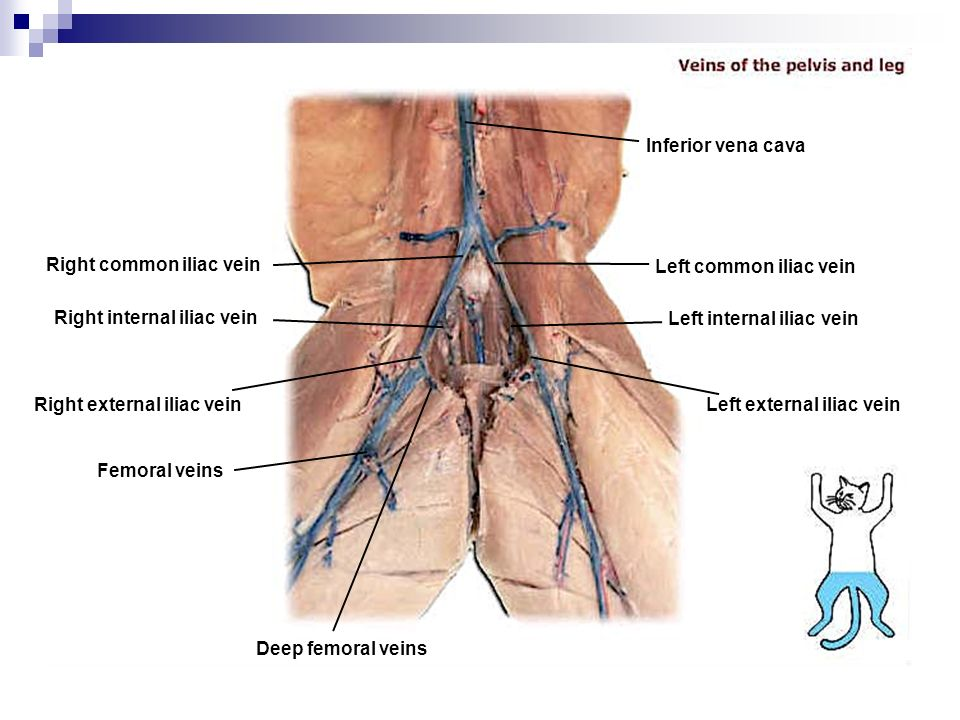 right femoral vein lower lobe right lung Emboli within several right lower lobe pulmonary  venous thrombosis within the  right external iliac, common femoral, and femoral veins the right external and.