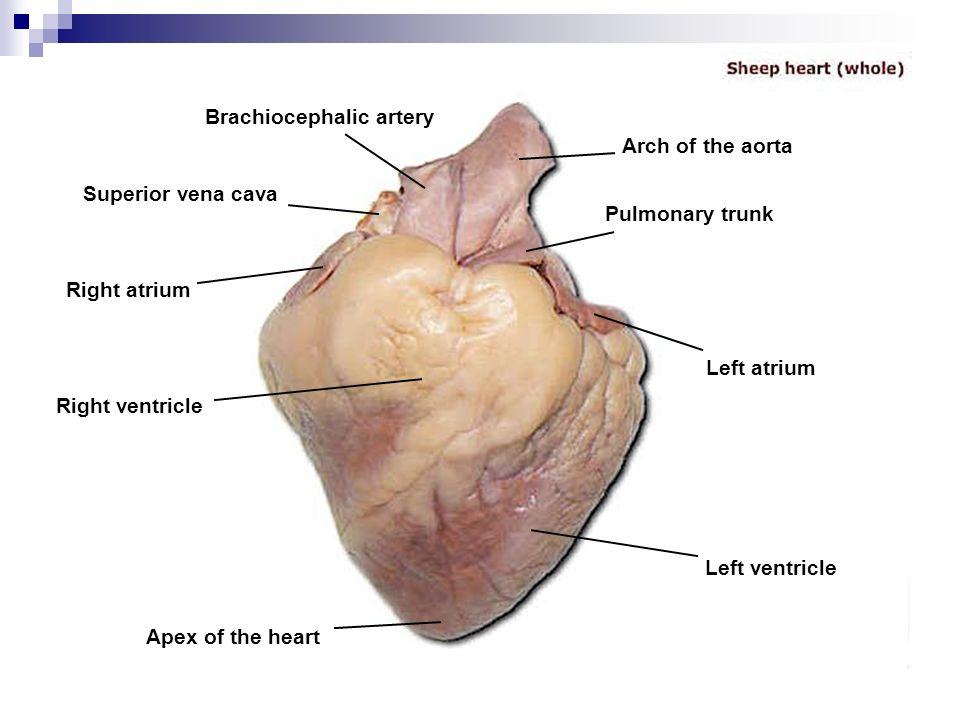 cardiovascular system - ppt video online download, Cephalic Vein