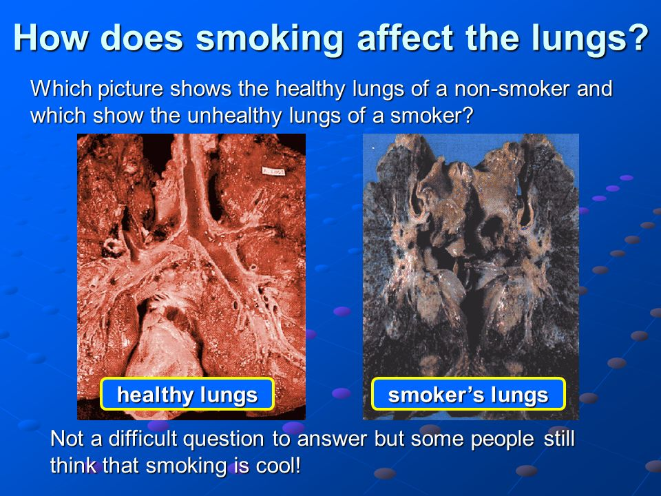 Effects On Lungs From Smoking