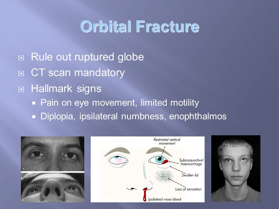 Orbital and Ocular Trauma - ppt video online download