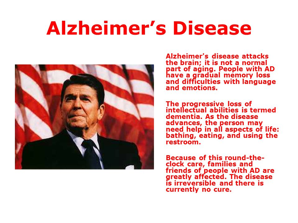 a description of the alzheimers disease as a progressive and irreversible brain disease Alzheimer's disease - heat map and analysis summary alzheimer's disease (ad) is an irreversible, progressive  changes within the brain.