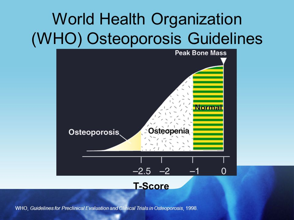 World health organization osteoporosis guidelines