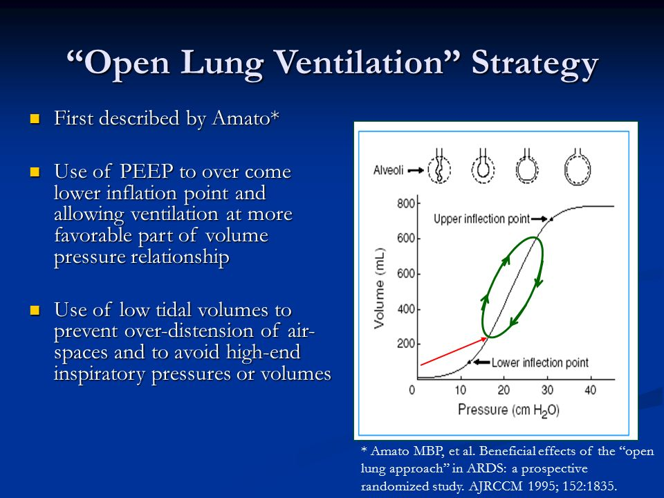 Pulmonex® II Xenon System - Lung Ventilation Systems ...