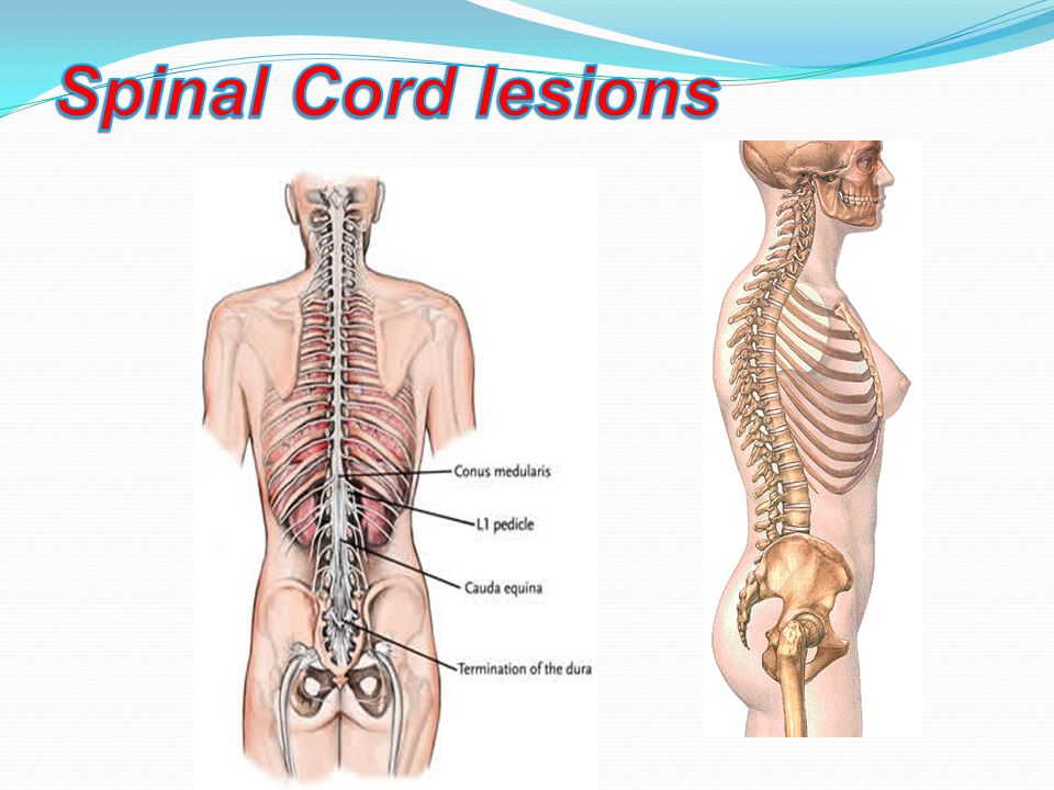 Spinal Cord Lesions Ppt Video Online Download