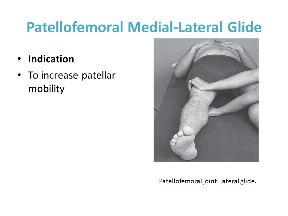 Patellofemoral Medial-Lateral Glide