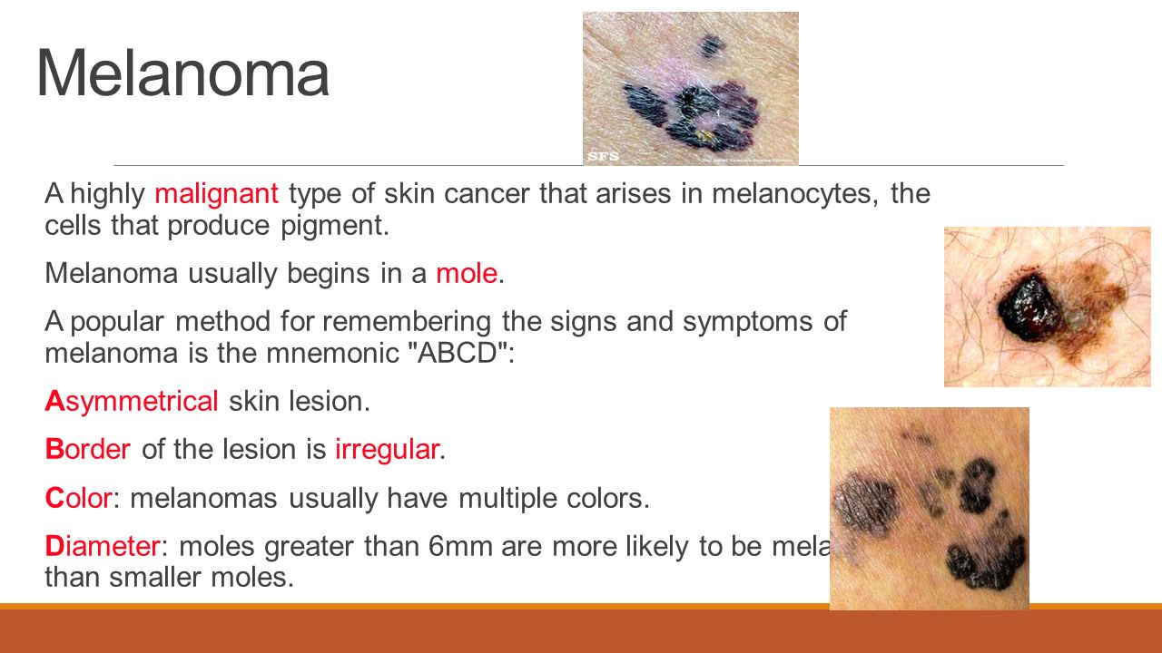 malignant melenoma essay Malignant melanoma is resistant to all forms of chemotherapy and surgery remains the basic instrument of curing melanoma at the earliest stages of the disease.