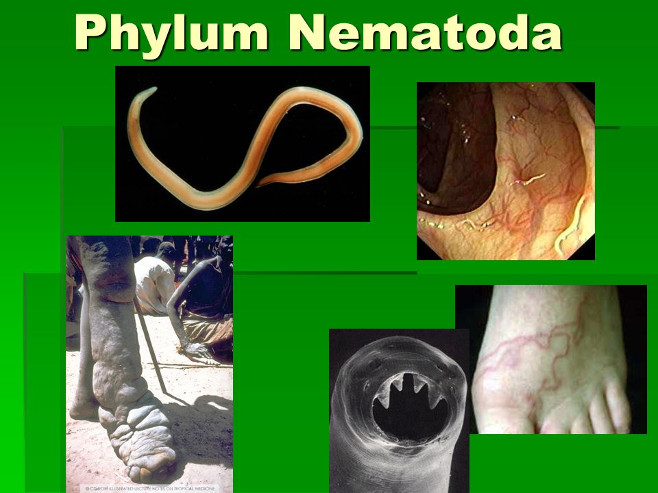 Phylum Nematoda Ppt Video Online Download